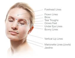 facial injections image